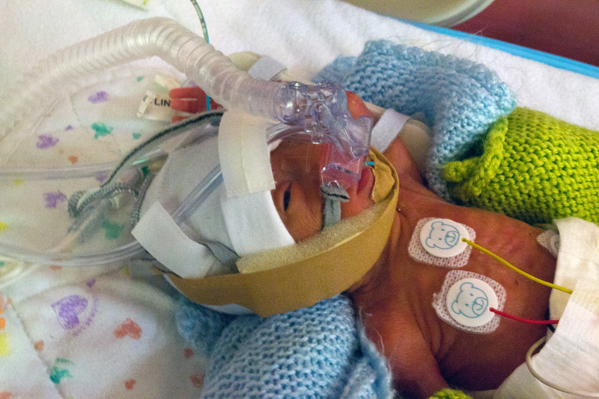 Tiny baby in an incubator with breathing apparatus on.